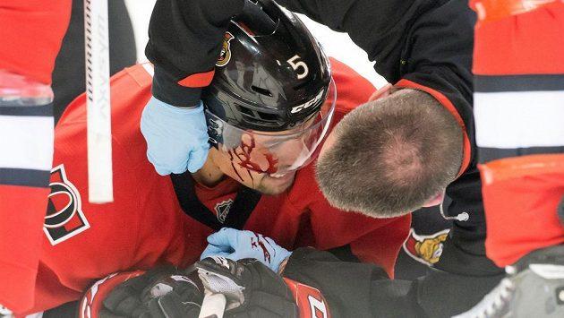 Zkrvavený obránce Ottawy Cody Ceci.
