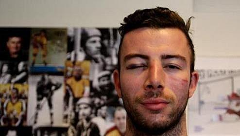 Jihlavský útočník Michal Hlinka po ataku skupiny výtržníků.