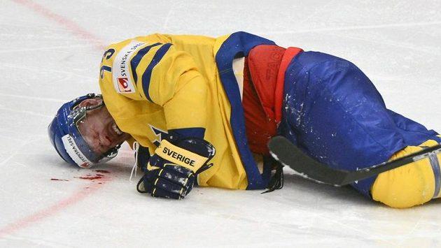 Zraněný švédský útočník Johan Franzén
