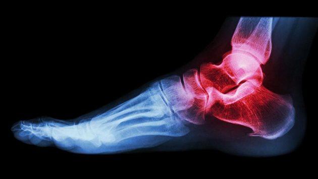 Lidské chodidlo je rafinované soustrojí.