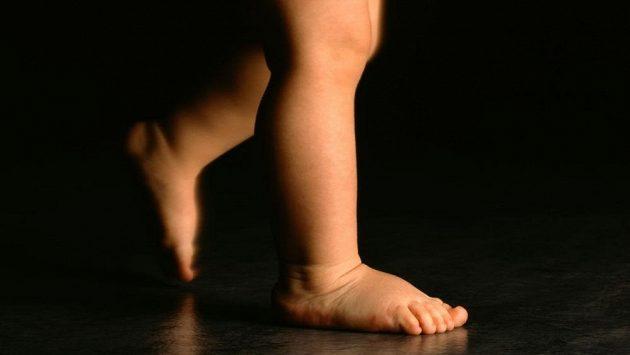 Správný vývoj chodidla je nutné podchytit brzy.