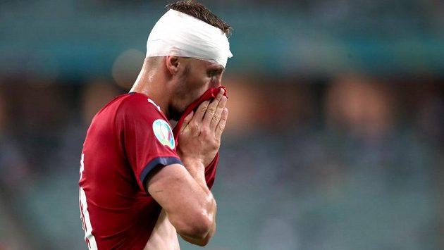 Krvavé zranění Tomáše Součka ve čtvrtfinále EURO ze hry záložníka nedostalo.