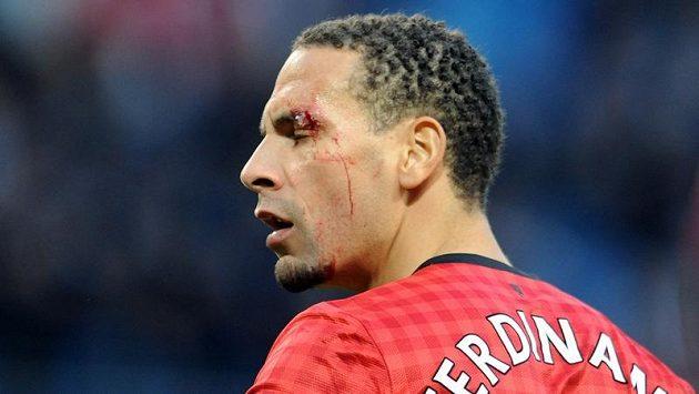 Obránci Manchesteru United Riu Ferdinandovi roztrhla obočí mince hozená z hlediště.