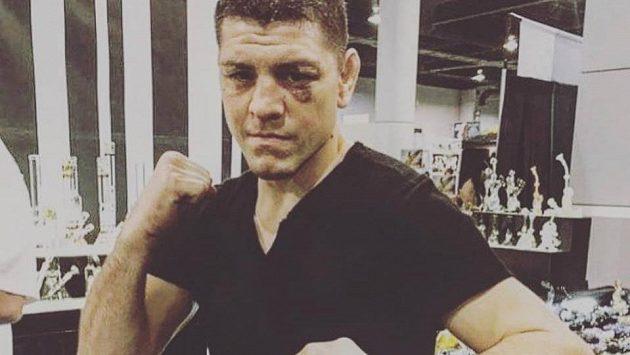 Nick Diaz mohl zápasit v Praze, nakonec nepřijel.