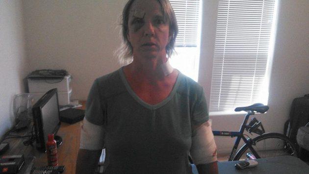 Karen Williamsová skončila pokousaná v nemocnici, nakonec přežila, medvědice byla utracena.