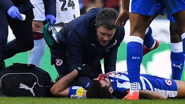 Portugalský útočník Oliveira musel do nemocnice poté, co mu soupeř šlápl na obličej.