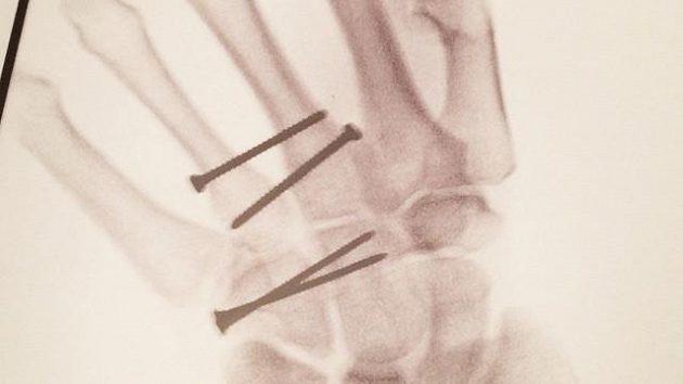 Rentgenový snímek operované ruky lyžaře Teda Ligetyho.
