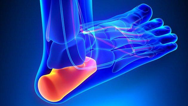 Zranění paty je jedno z nejnepříjemnějších, jaké běžce může potkat.