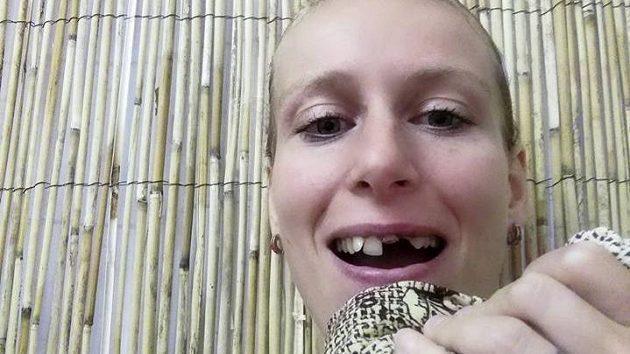 Squashistka Zuzana Kubáňová bude muset po turnaji v Čimicích k zubaři...