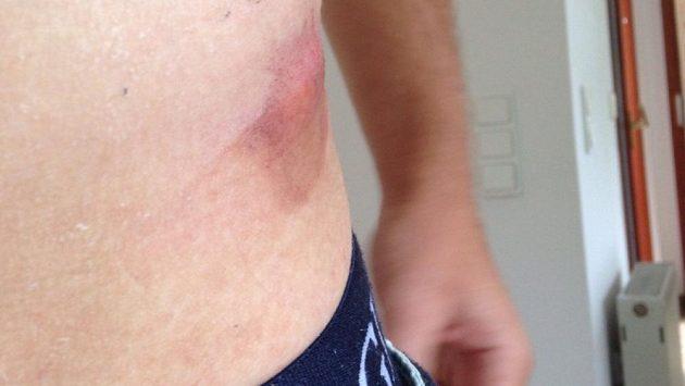 Německý jachtař Erik Heil vystavil na sítích své problémy po předolympijských závodech v Riu. Takhle to vypadalo na začátku. Vyrážka na boku.