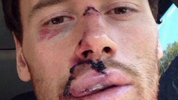 Martin Havlát poté, co se dostal do péče lékařů.