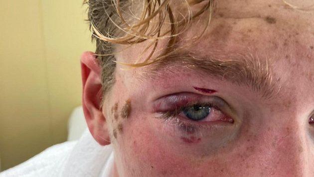 Bristký plavec Hector Pardoe dostal během olympijského závodu loktem do obličeje.