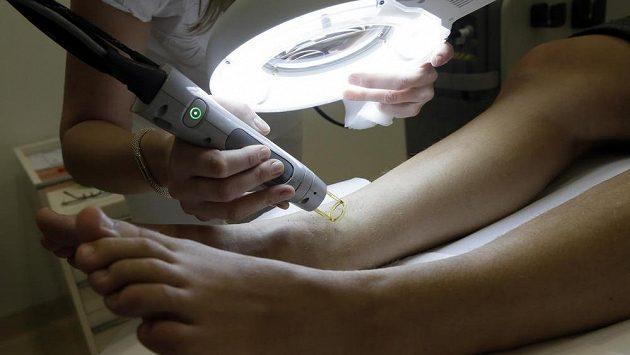 Laserová depilace nohou. Každý chloupek musí pryč, je nutné si pořádně posvítit.