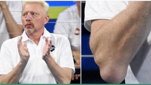Boris Becker má dlouhodobé problémy s tenisovými lokty