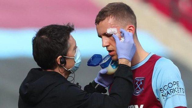 Ošetřovaný Tomáš Souček v dresu West Hamu.