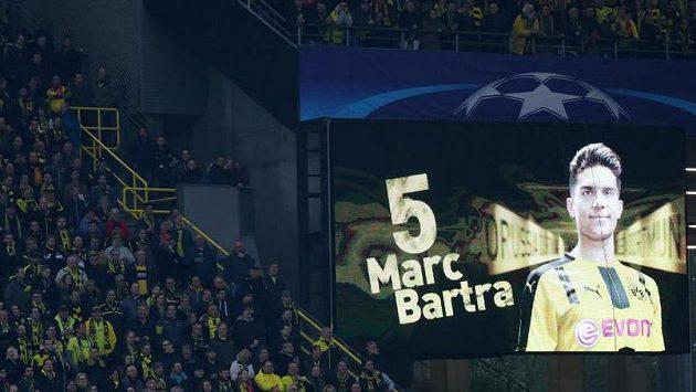 Stoper Dortmundu Marc Bartra se dává dohromady po operaci. Během utkání Ligy mistrů s Monakem ale jeho jméno bylo jedním z hlavních témat.