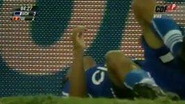 Radostí ze vstřeleného gólu si zlomil nohu