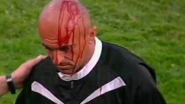 Zranění rozhodčího při fotbale v Bosně