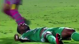 Děsivé zranění konžského fotbalisty