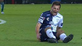Děsivé zranění, fotbalista si zlomil nohu.